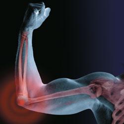 elbow surgery and hemophilia