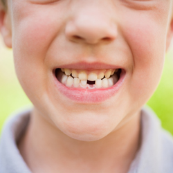 Boy grinning with missing tooth